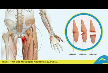 Distens o da musculatura da virilha fisioterapia oeiras for Exercicio para interno de coxa